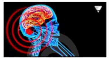 Kraftig ökning av patienter som vårdas för hjärntumör av okänd natur