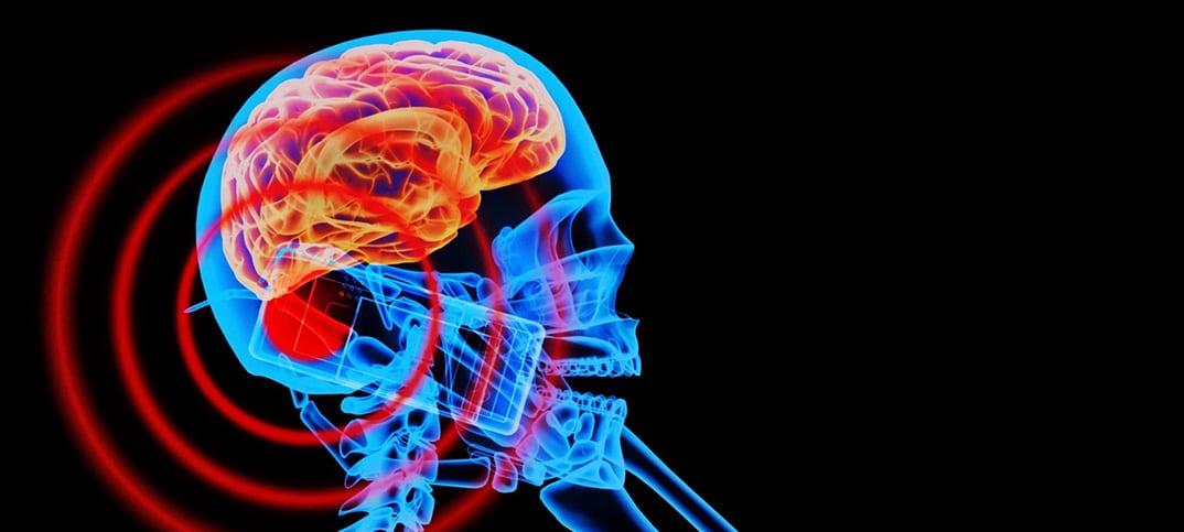 mobilstrålning råtthjärnan Öppet brev till regering oroliga för mobilstrålningen hennes hjärntumör